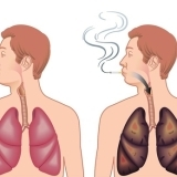 Medical News COPD(慢性閉塞性肺疾患)