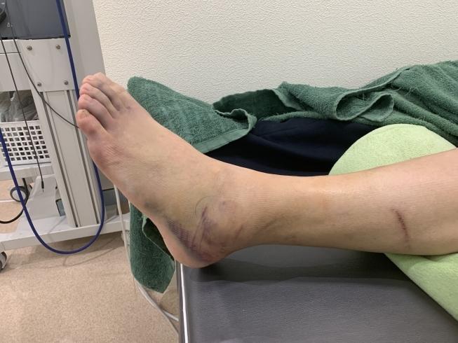 骨 挫傷 治療