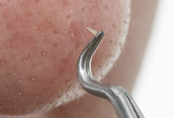 角栓が取れるクレンジング